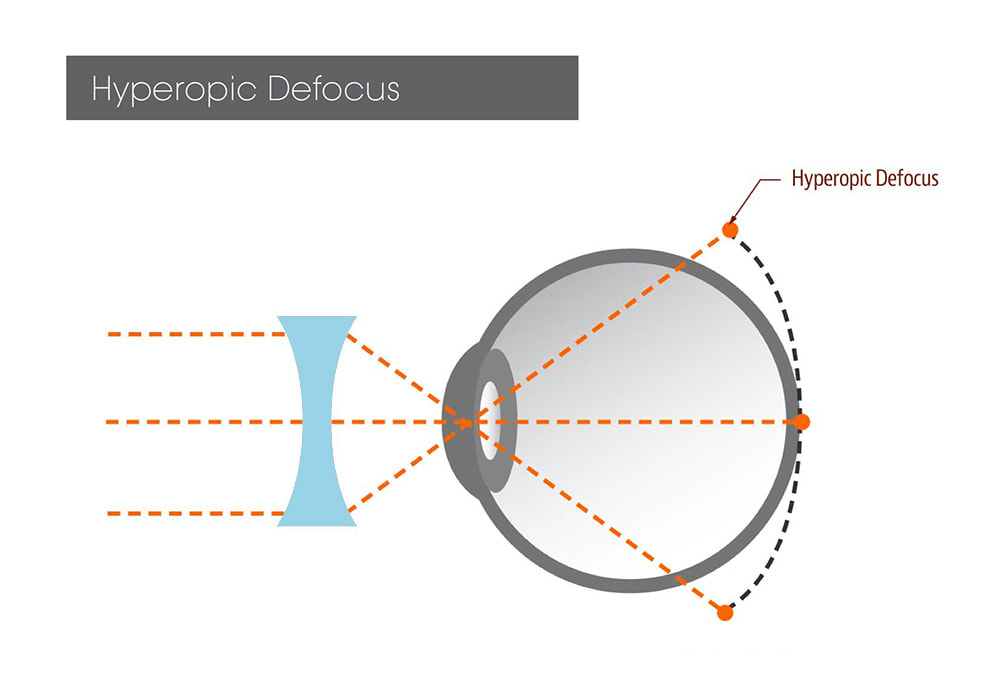 Hyperopic defocus, which occurs with regular glasses and contact lens correction, is linked to increasing myopia progression.