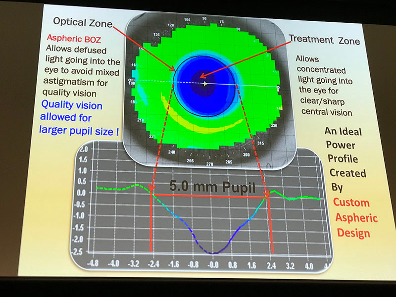 The optimal Ortho K lens design for myopia control. #OSO2018