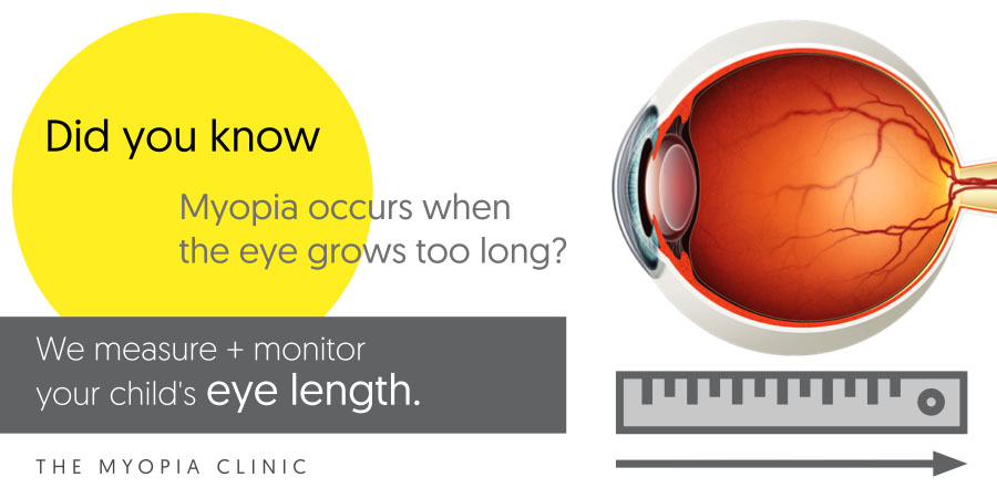 Unlike most optometrists, we measure your child's eye length as part of our assessment. Because eye length matters when it comes to managing your child's myopia and assessing the risk of lifetime complications from abnormal eye growth.